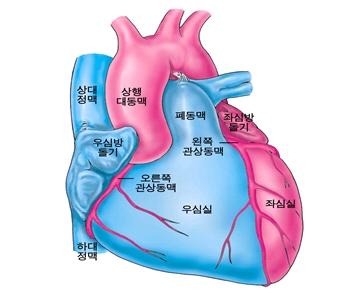 심근경색증